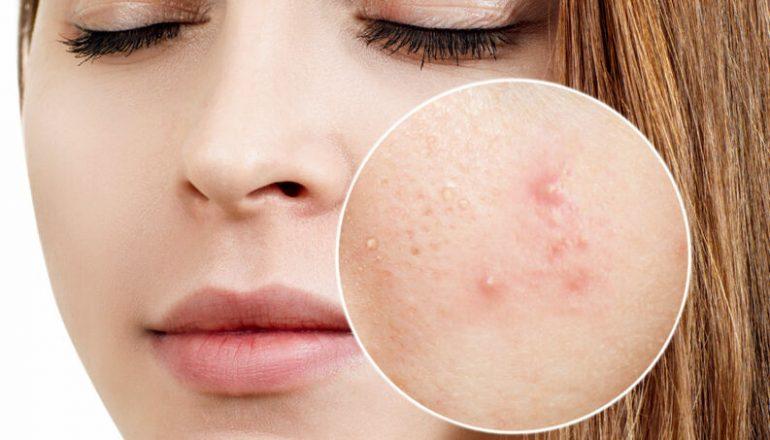 tratamento da acne dermatologista florianopolis