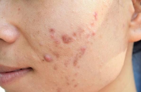 6 remédios caseiros para acnes e manchas na pele